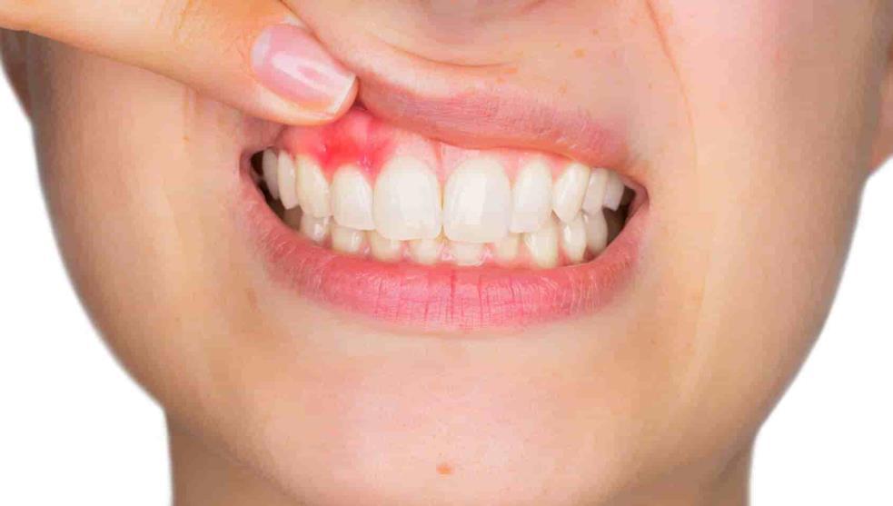 disminuye los problemas dentales