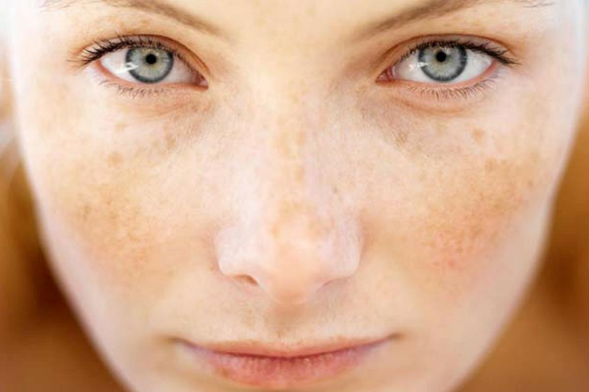 que hacer si tienes manchas en la piel