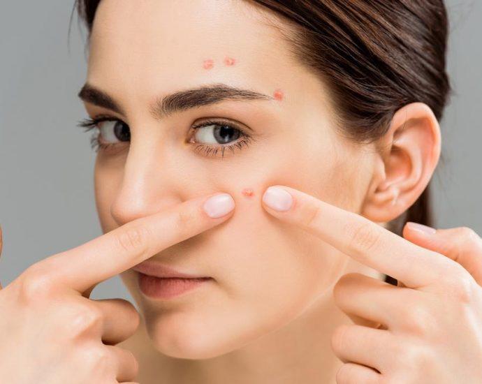 que hacer contra el acné femenino